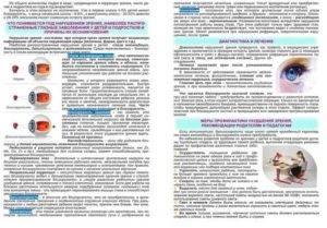 """Близорукость у детей: симптомы и лечение - """"здоровое око"""""""