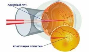 Болит глаз после лазерной коагуляции сетчатки глаза