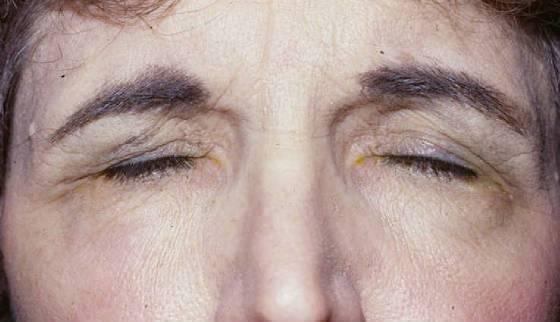 Причины и лечение блефароспазма