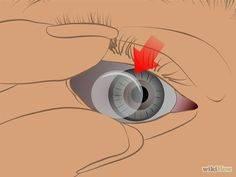 Как вытащить линзу из глаза если она прилипла, как правильно вытаскивать кусочек линзы, как достать из заплывшего глаза
