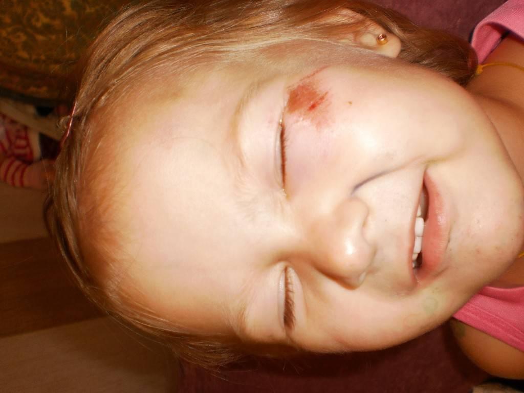 Чем мазать синяки ребенку 1 год - информация, которая удивляет