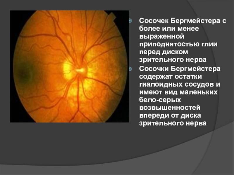 Отёк диска зрительного нерва: причины, симптомы, лечение oculistic.ru отёк диска зрительного нерва: причины, симптомы, лечение