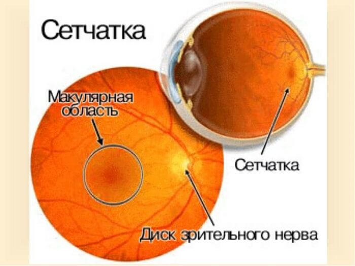 Кистозный макулярный отек сетчатки глаза: лечение заболевания