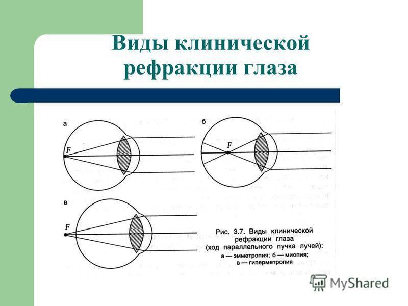 Рефрактометрия - что это такое, расшифровка