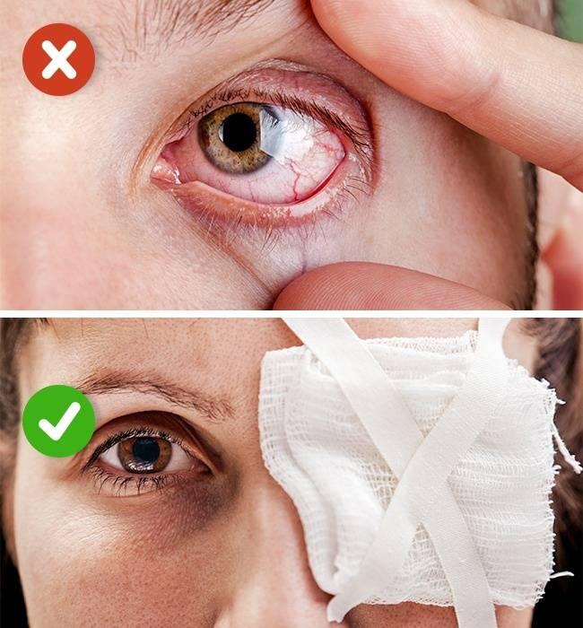 Лечение в домашних условиях при травме глаза