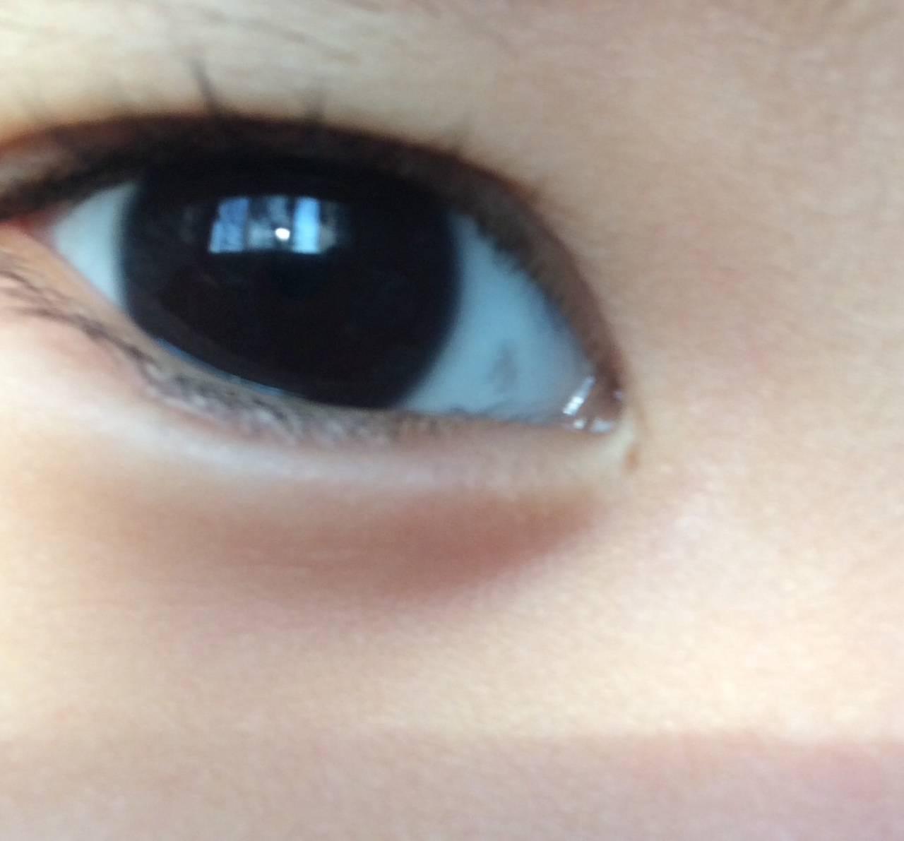 Красные глаза у ребенка: причины и лечение, что делать родителям