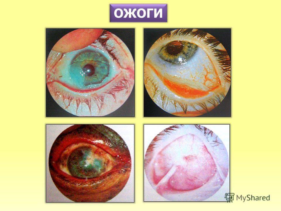 Химический ожог глаз: первая помощь, лечение после наращивания ресниц, поражения роговицы известью, клеем, кислотой, степени и симптомы