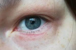 Чешутся глаза в уголках: что делать, причины, лечение