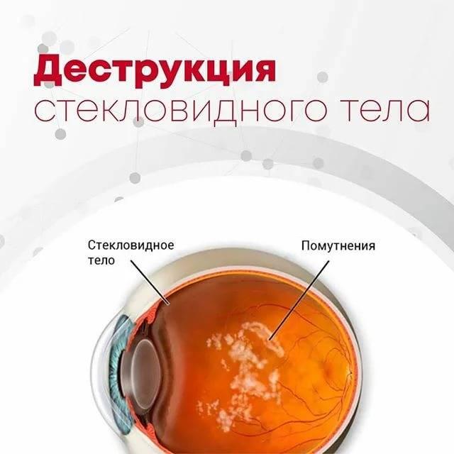 Отслойка стекловидного тела: причины, лечение, прогнозы при зост