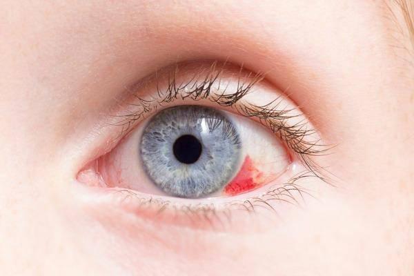Глаза новорожденного ребенка: когда меняются, что делать, если лопнул сосуд и при синяках под глазами, и другие особенности