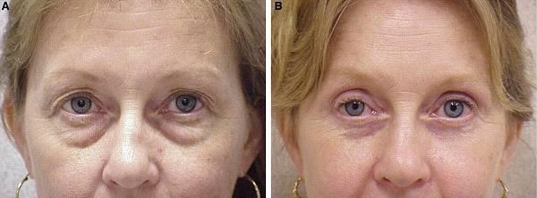 Грыжи под глазами:как избавиться без операции народные средства, косметические процедуры, гимнастика для век