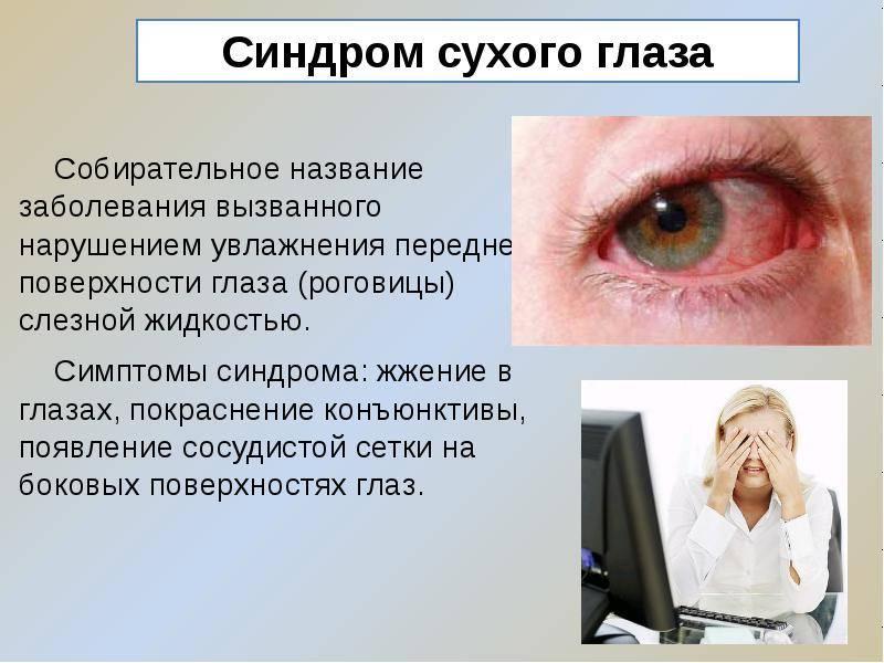 Синдром сухого глаза: симптомы, лечение народными средствами и каплями