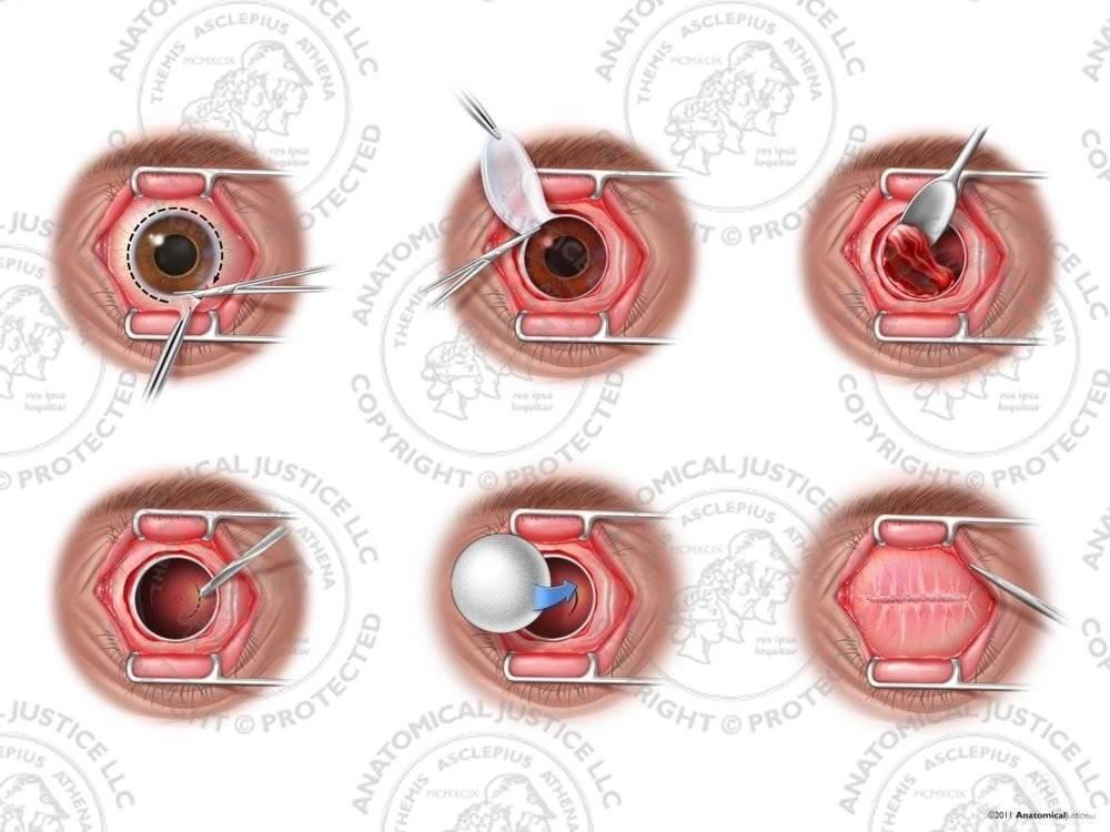 Энуклеация глаза | лечение глаз