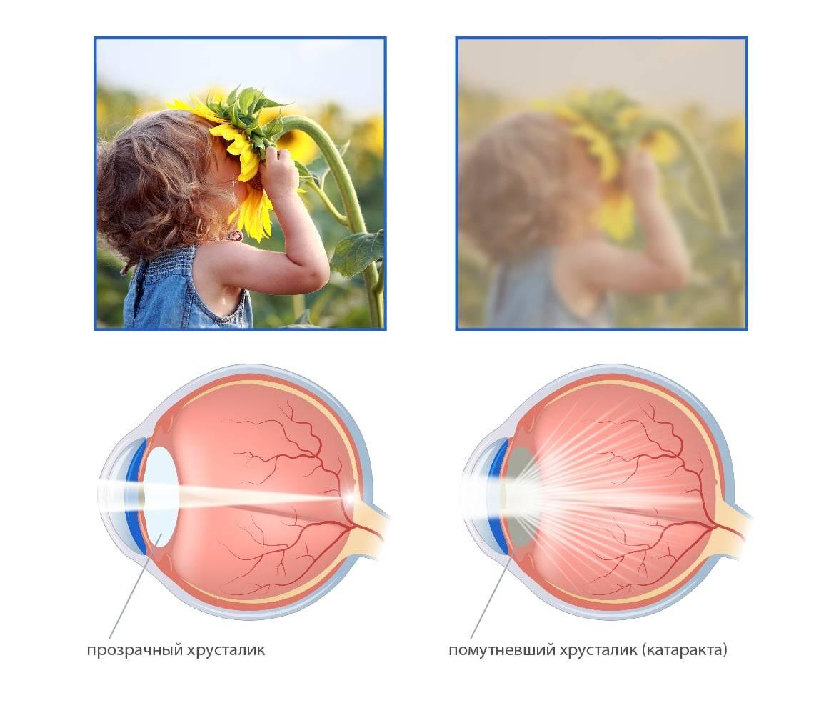 10 видов катаракты и основные принципы лечения