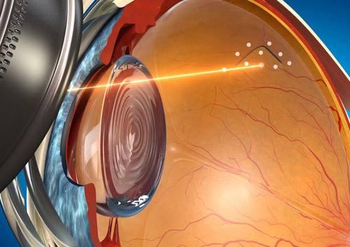 Коагуляция сетчатки лазерная при беременности – лазерная коагуляция сетчатки на 36-й неделе — запись пользователя ирина (id1131735) в сообществе здоровье будущей мамы и малыша в категории зрение — och