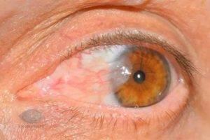 Киста на веке глаза – виды, причины и лечение (фото)