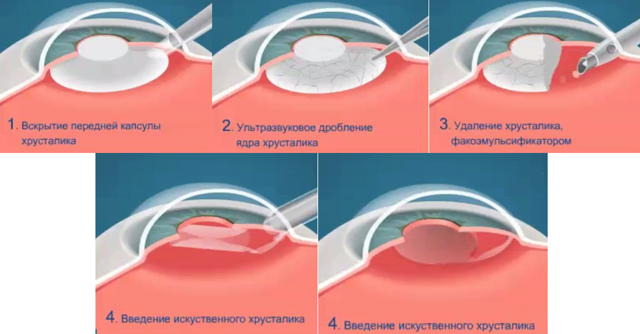 Замена хрусталика глаза при катаракте: что нужно знать про операцию?