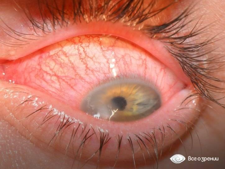 Глаз закис и болит