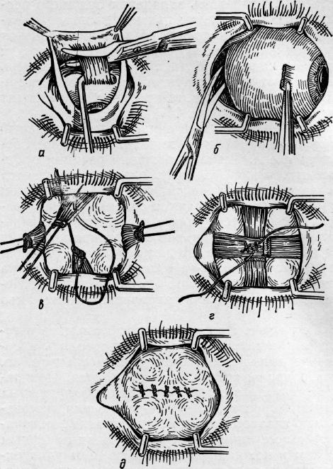 Энуклеация глазного яблока: операция по удалению глаза у человека - как проводится
