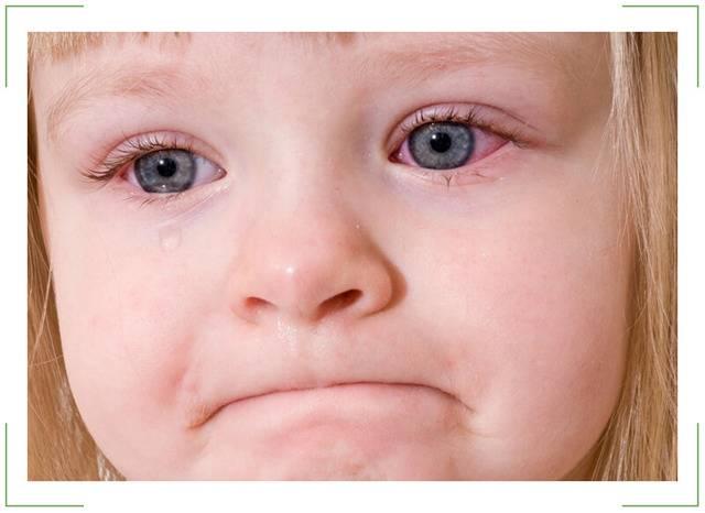 Лопнул сосуд в глазу у ребенка: что делать, капилляр, грудничка, причина, новорожденного, младенца, почему
