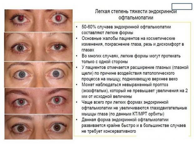Энофтальм: что это, причины, лечение, симптомы, диагностика и осложнения