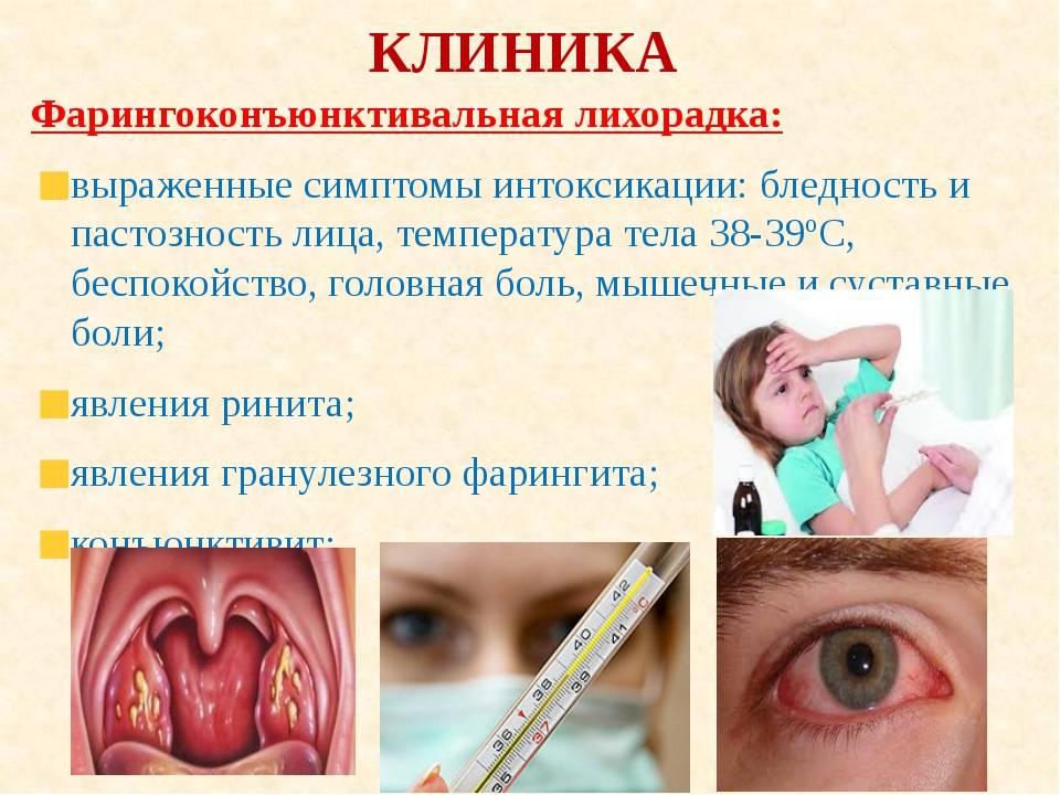 Аденовирусный конъюнктивит у детей