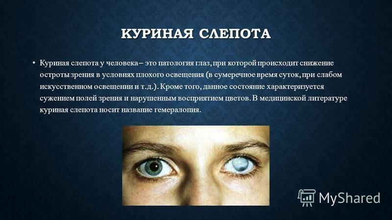 Ухудшение зрения - причины, симптомы, диагностика и лечение