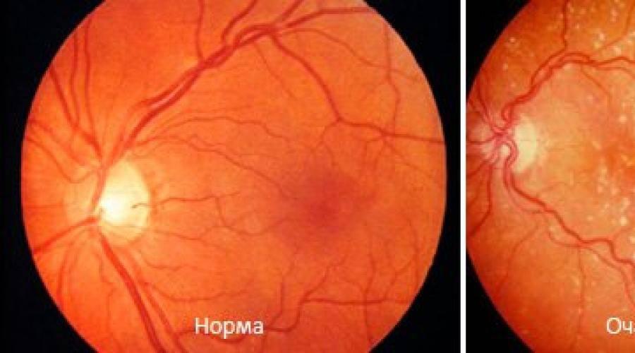 Что это такое фоновая ретинопатия глаза: формы заболевания, причины, симптомы и лечение болезни
