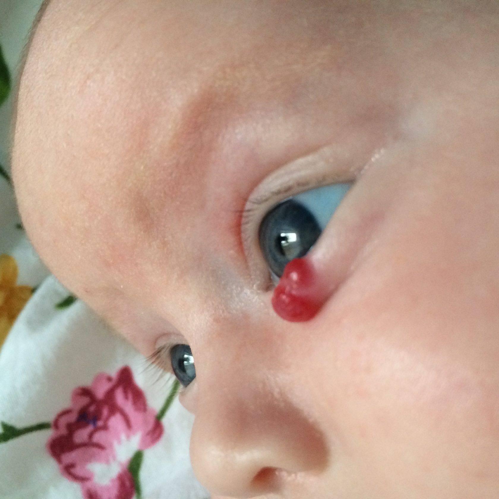 Сосудистая звездочка на лице у ребенка: причины и лечение
