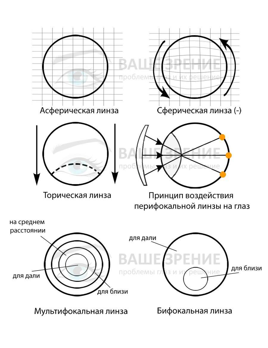 Асферические контактные линзы и их особенности