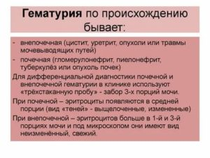 Метаморфопсия – когда прямые линии кажутся кривыми - wikimedichelp.ru