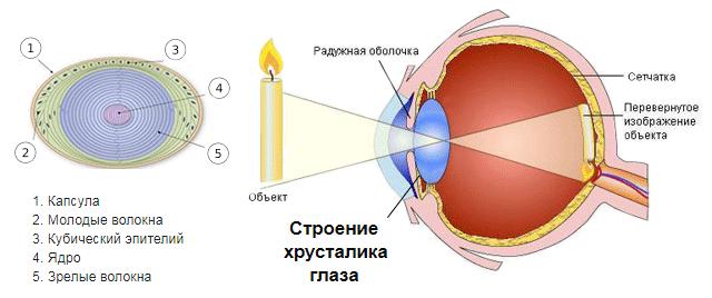 Хрусталик глаза: строение, функции, операция по замене (цена, последствия)