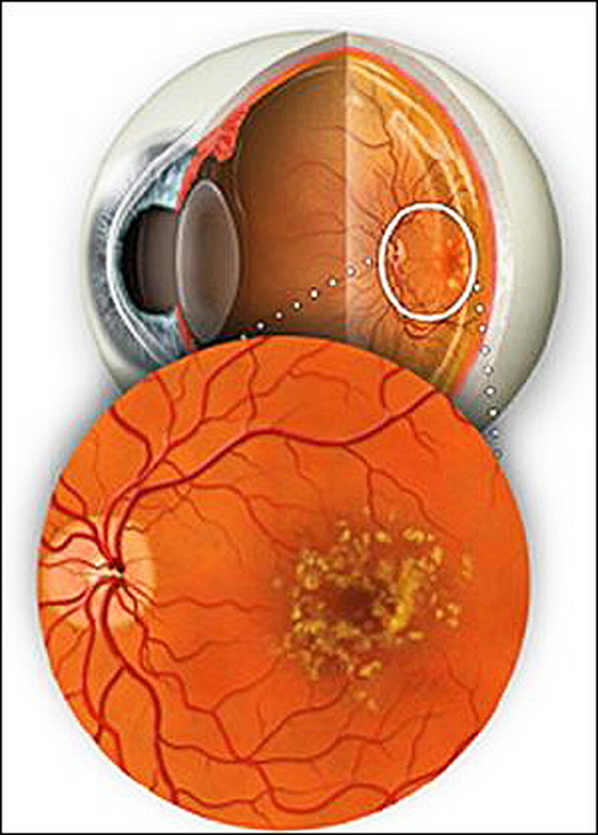Макулодистрофия сетчатки глаза: возрастная, сухая и влажная формы, причины и лечение