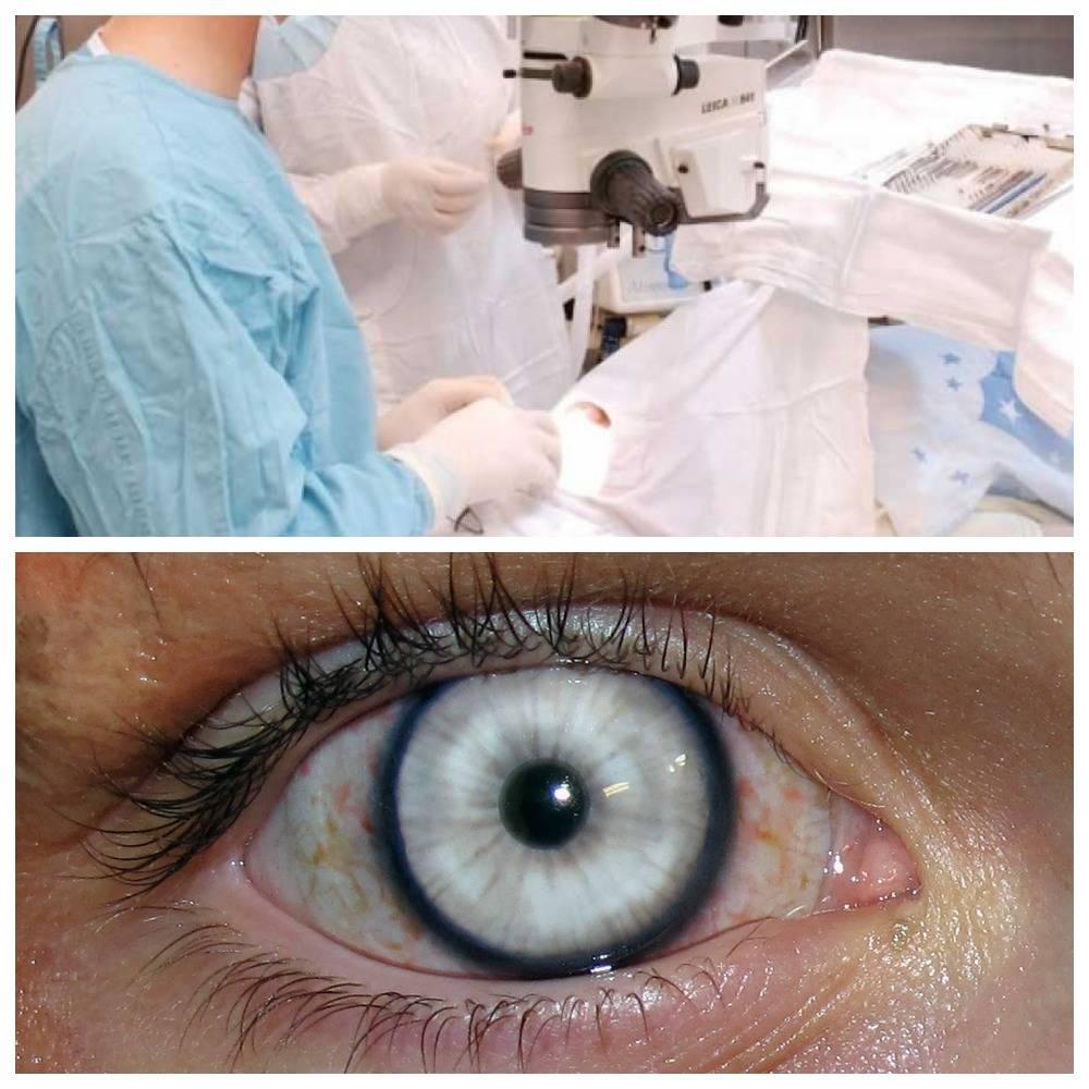 Пересадка (трансплантация) роговицы глаза