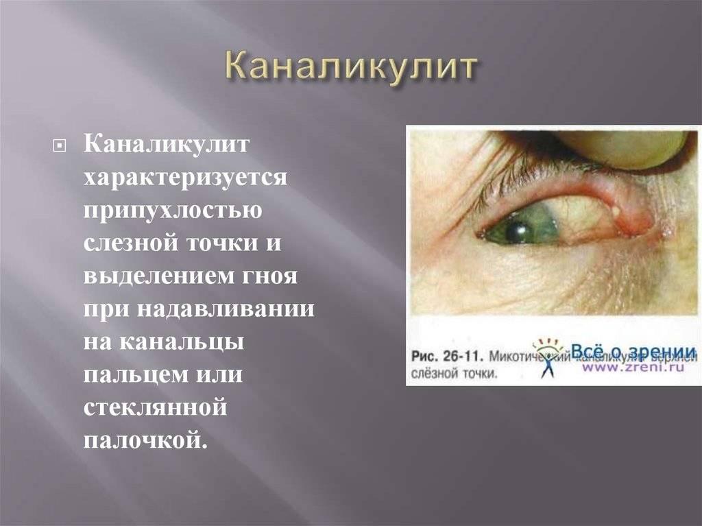 Симптомы и лечение воспаления слезного канала у взрослых