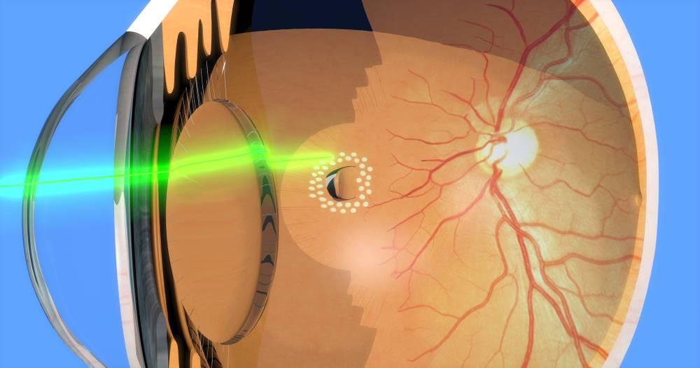Лечение отслоения сетчатки глаза: виды операций и их стоимость