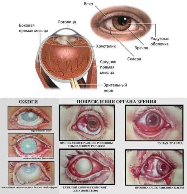 Ожог глаза сваркой: первая помощь, лечение, капли, народная медицина