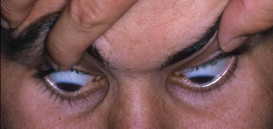 Кератоконус - симптомы, лечение, причины болезни, первые признаки