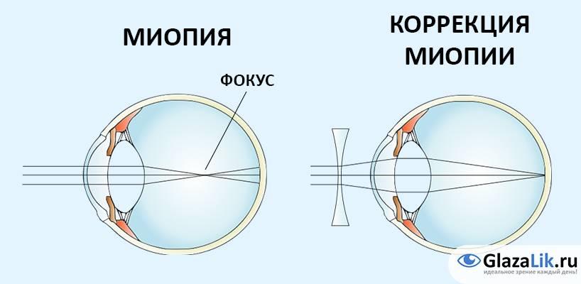 Очки или линзы при близорукости (миопии): правила подбора