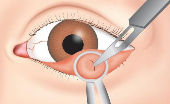 """Удаление халязиона: показания и противопоказания - """"здоровое око"""""""