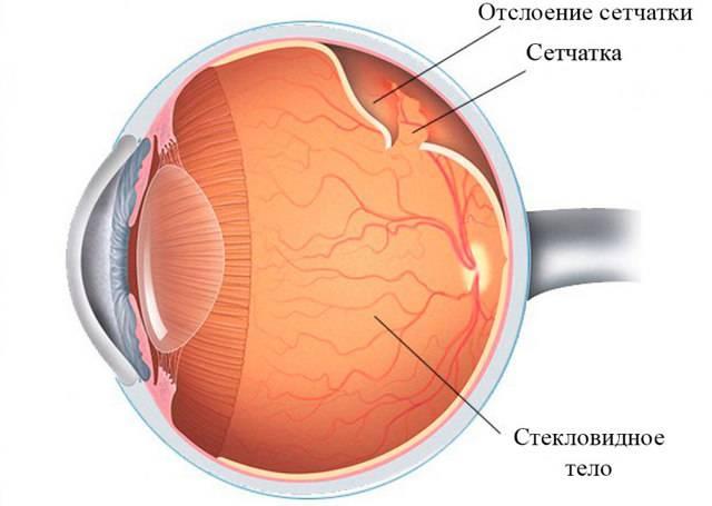 Восстановление сетчатки глаза народными средствами