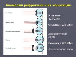 Рефрация глаза - нарушение рефракции глаза