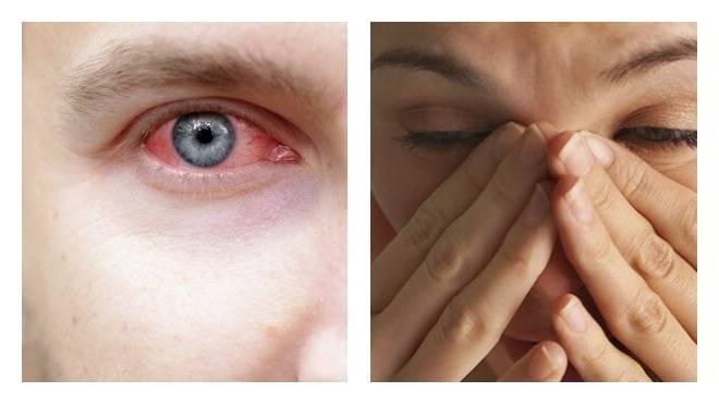 Болит голова красные сосуды в глазах