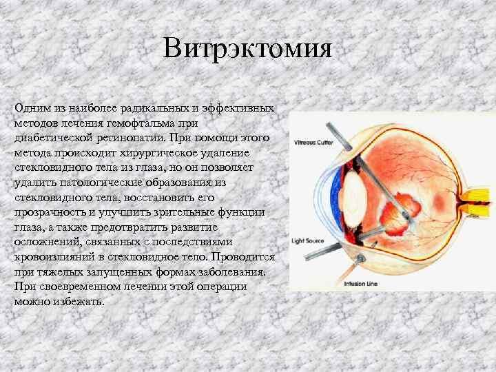 Витрэктомия (операция по удалению стекловидного тела глаза): показания, виды и проведение, рекомендации после
