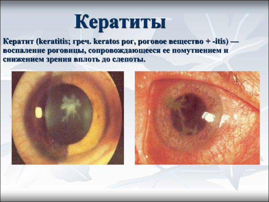 Что за болезнь кератит – травматическое заболевание, лечение бактериального