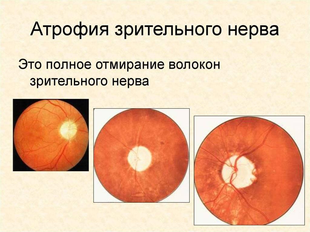 Атрофия зрительного нерва: частичная и полная