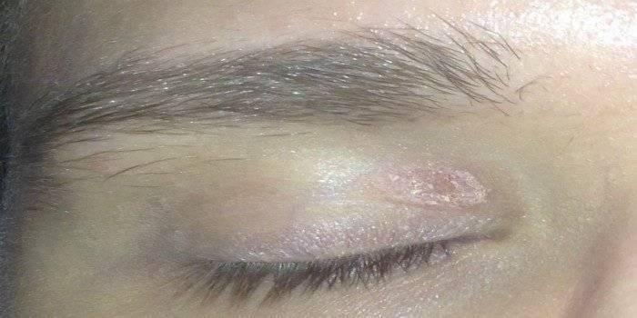 Почему кожа вокруг глаза сухая, что делать