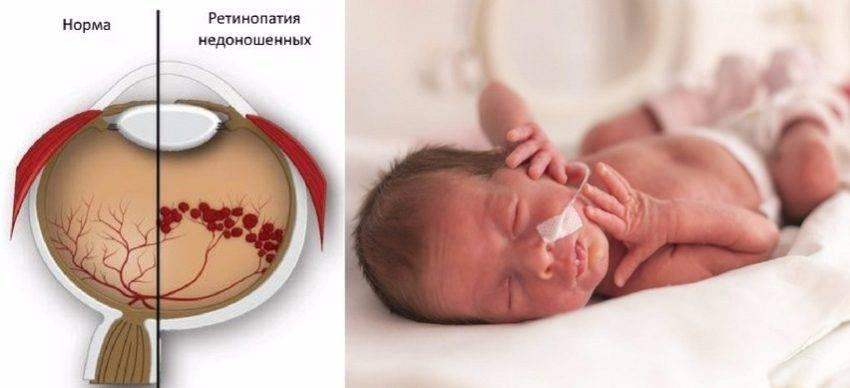 Стриарная ангиопатия у новорожденного
