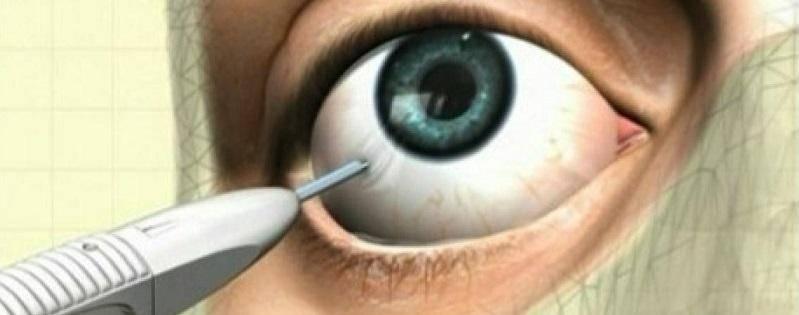 Ещё один миф про инъекционные процедуры: игла против канюли. в чем подвох? - центр эстетической медицины