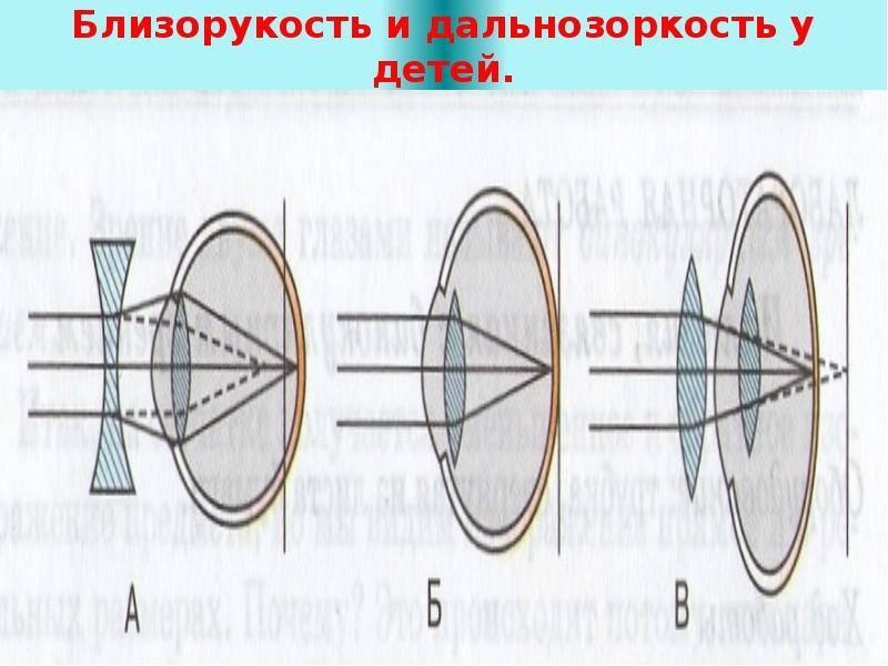 Какие очки выбрать при дальнозоркости: плюс или минус?